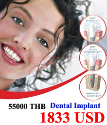 Thai dental,Thai dentists,Thai cosmetic dentist,Thai cosmetic dental,Thai dental implants