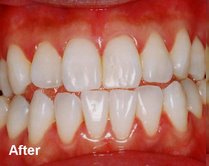 After - Laser tooth whitening bangkok Thailand Doctor Smile Laser AT Ratchatewi Station Dental Clinic Bangkok