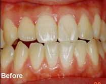 Before - Laser tooth whitening bangkok Thailand Doctor Smile Laser AT Ratchatewi Station Dental Clinic Bangkok